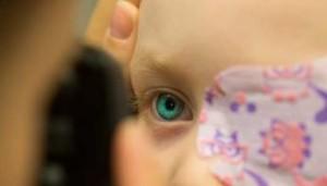 Behandlung der Sehschwäche mit Okklusion (Zukleben)